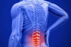 Back-Pain-Home-treatment.jpg